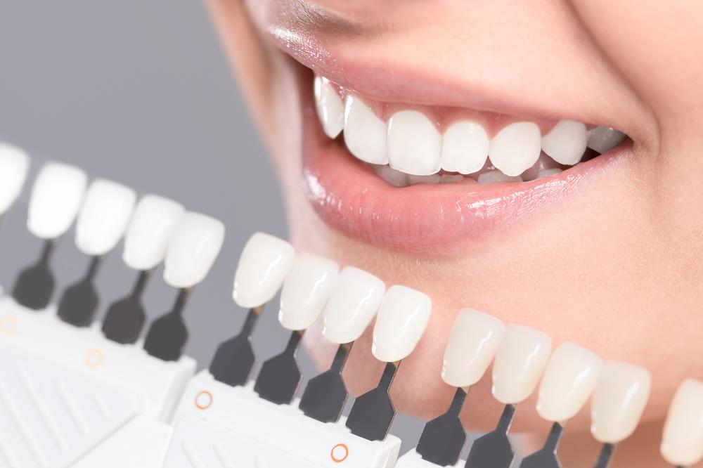 bílé zuby 1